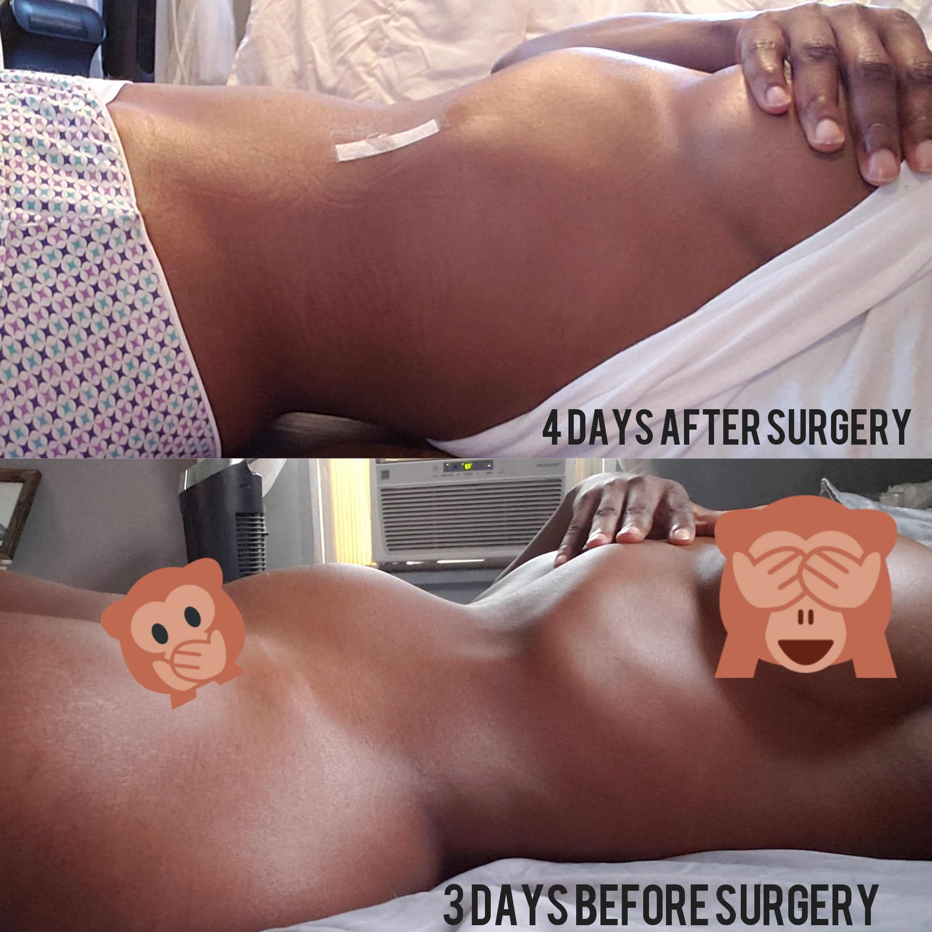 My Fibroid Story: From Start to Almost Finish - LaparoscopicMyomectomy